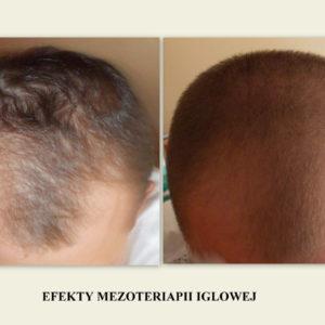 heaven-mezoterapia-iglowa-skory-glowy (2)